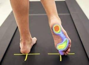l'Esame baropodometrico ci permette valutare la postura del corpo del paziente e realizzare plantari su misura per corregere o prevenire eventuali problemi