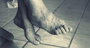 Il piede de l'anziano richiede una attenzione accurata per prevenire peggioramenti delle condizioni posturali e del piede