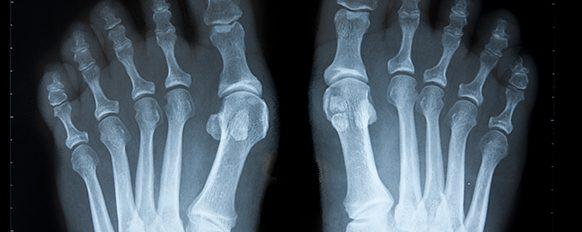Radiografia immagine Alluce valgo