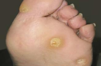 tipi di verruche sui piedi